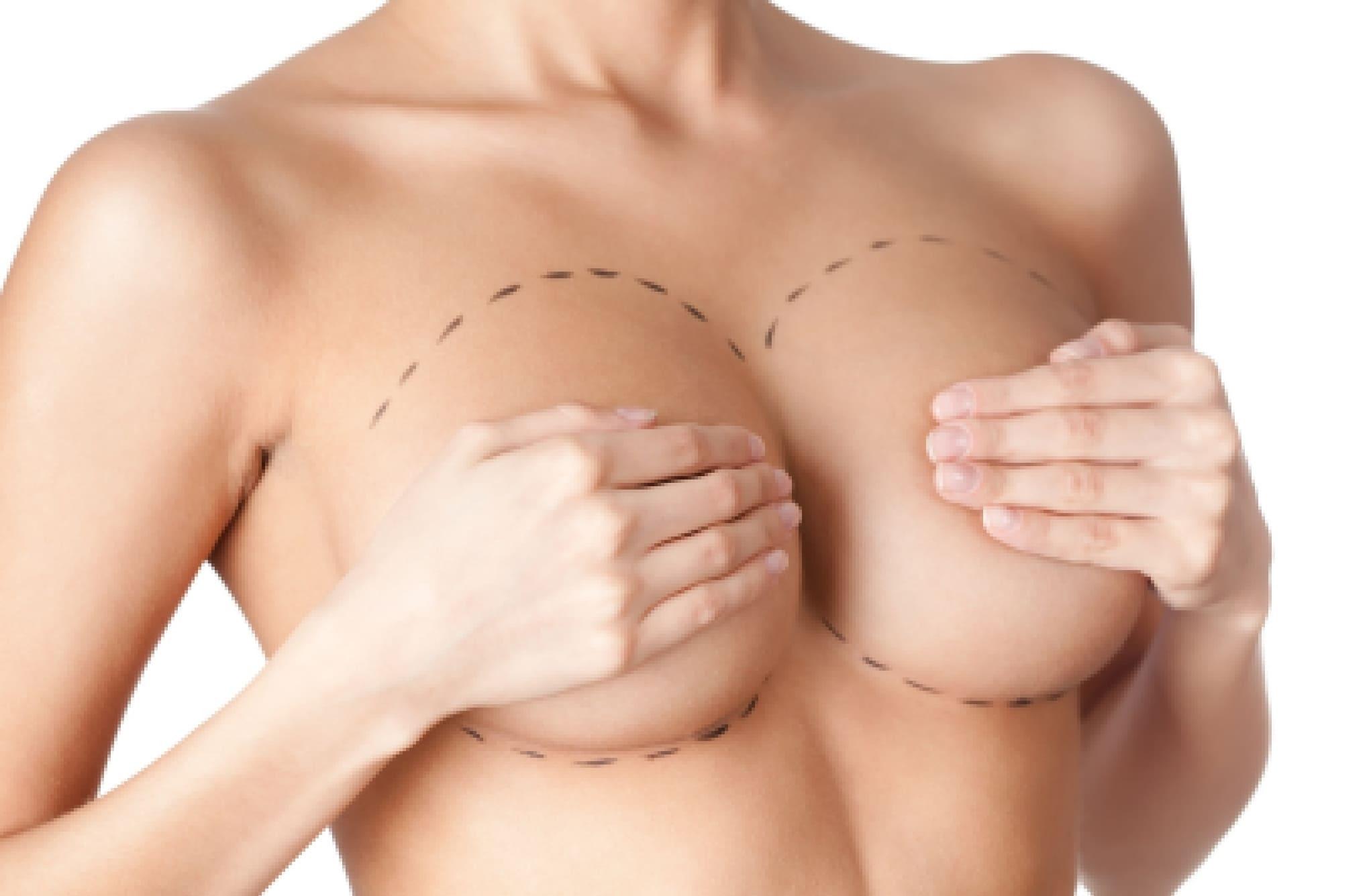 Увеличение груди - маммология и пластическая хирургия Харьков