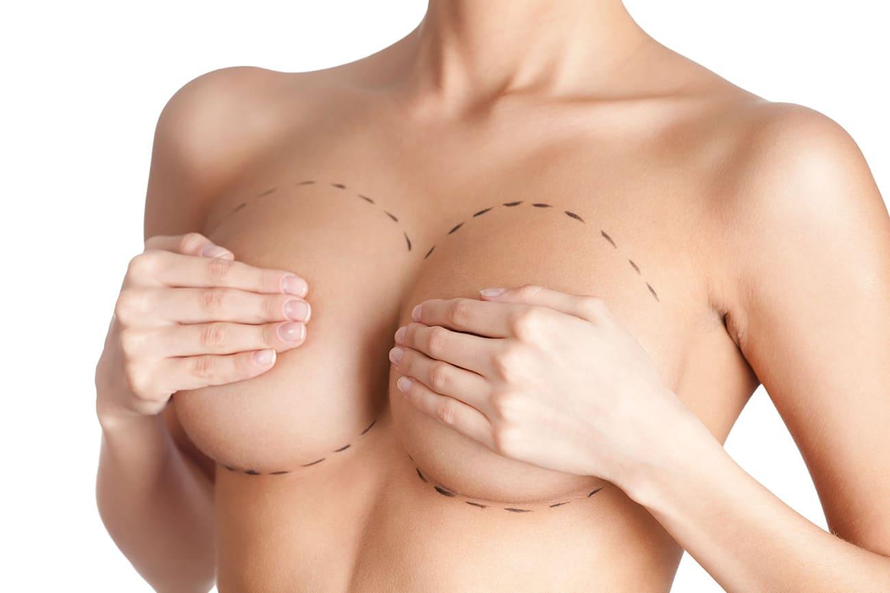 Подтяжка грудей - маммология и пластическая хирургия Харьков